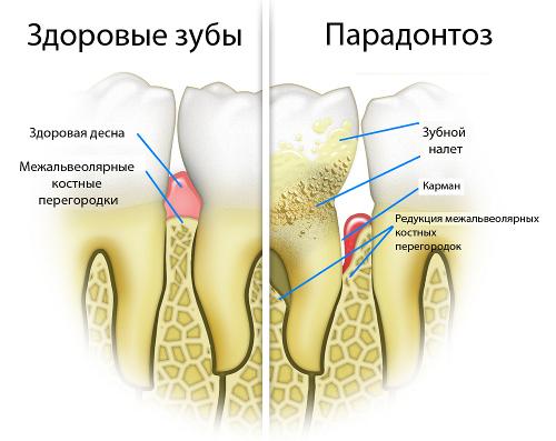 parodontoz (2)